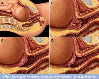 Processo de afinamento do colo